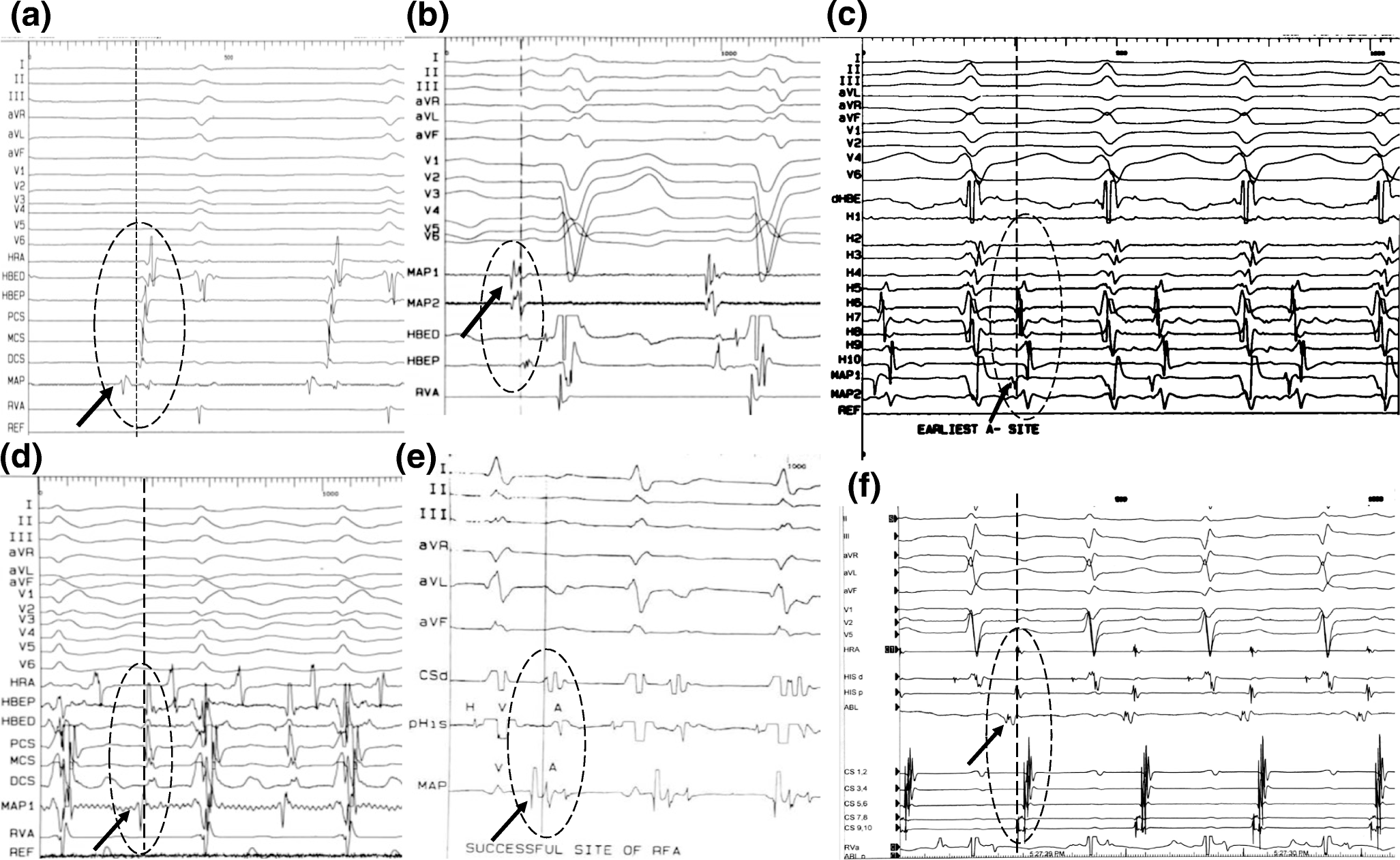 Focal atrial tachycardia ablation: Highly successful with