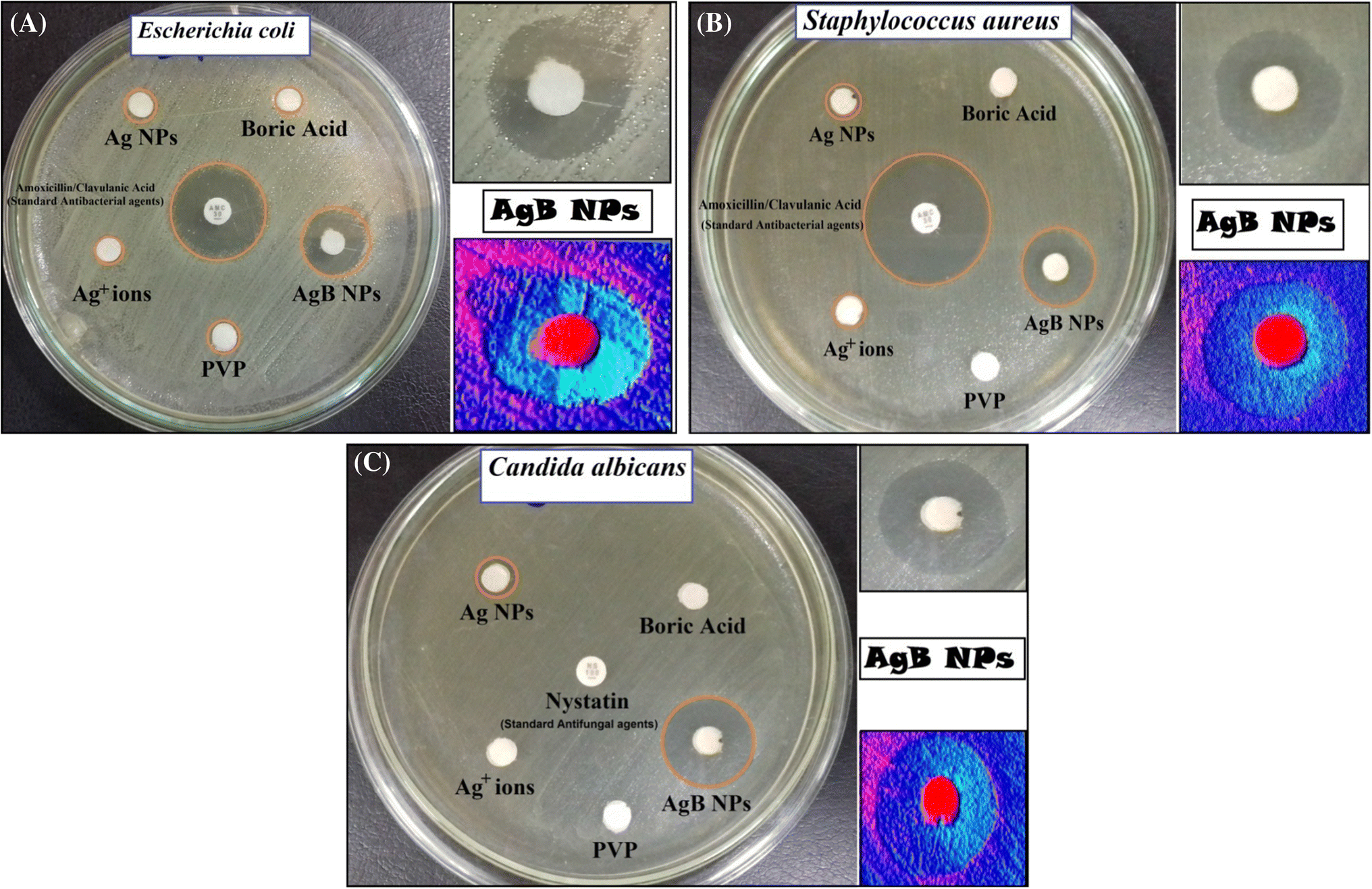 Antibiofilm and Antimicrobial Activities of Silver Boron