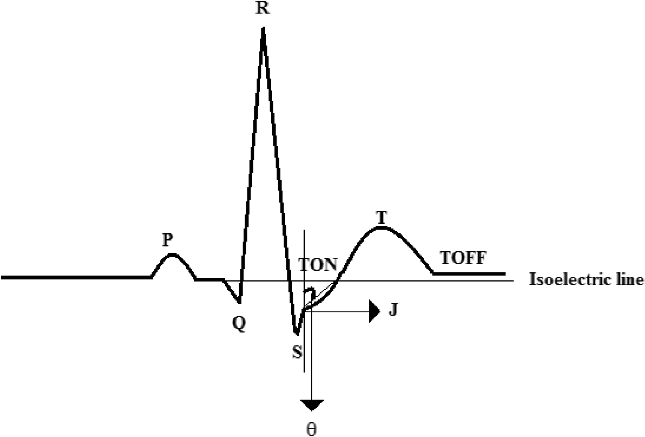 Asynchronous Adaptive Threshold Level Crossing ADC for Wearable ECG
