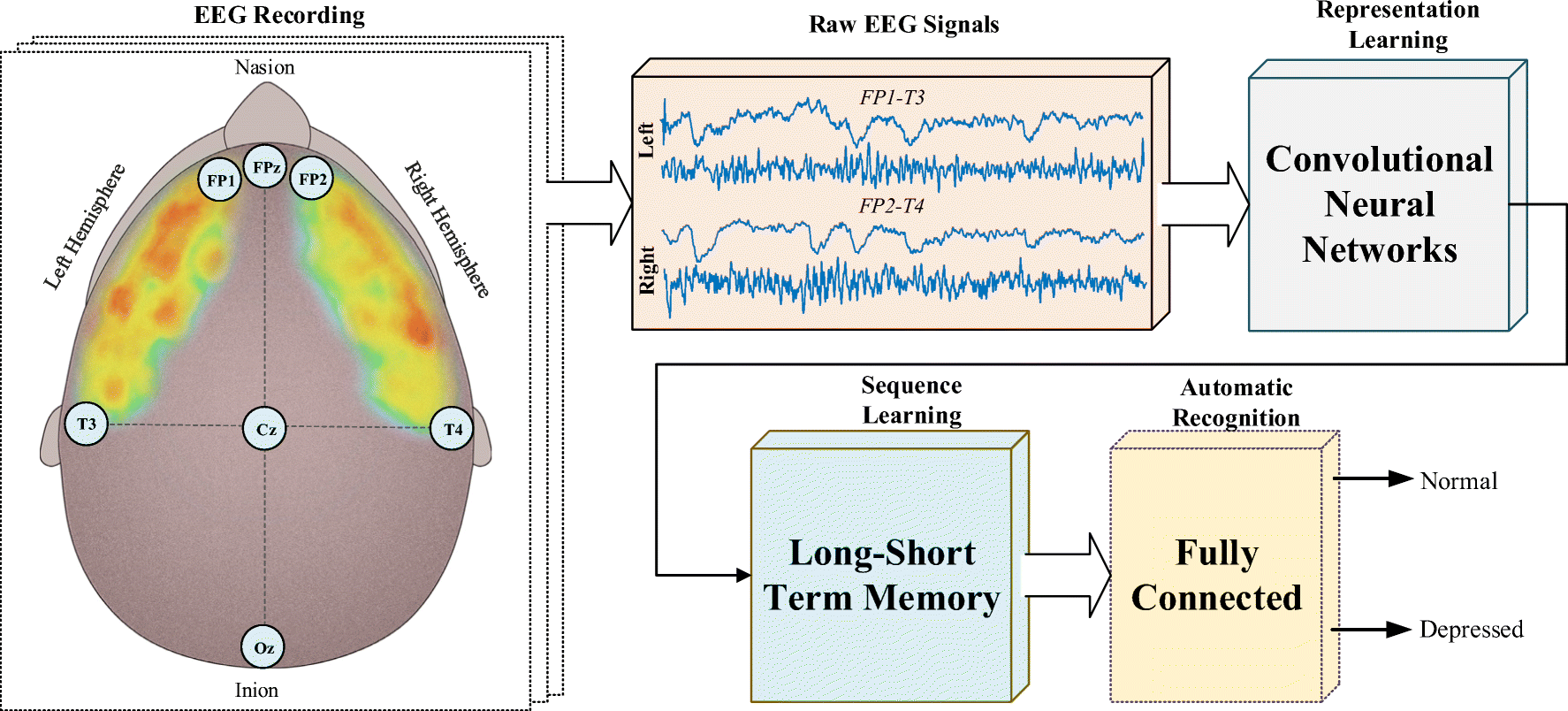 Automated Depression Detection Using Deep Representation and
