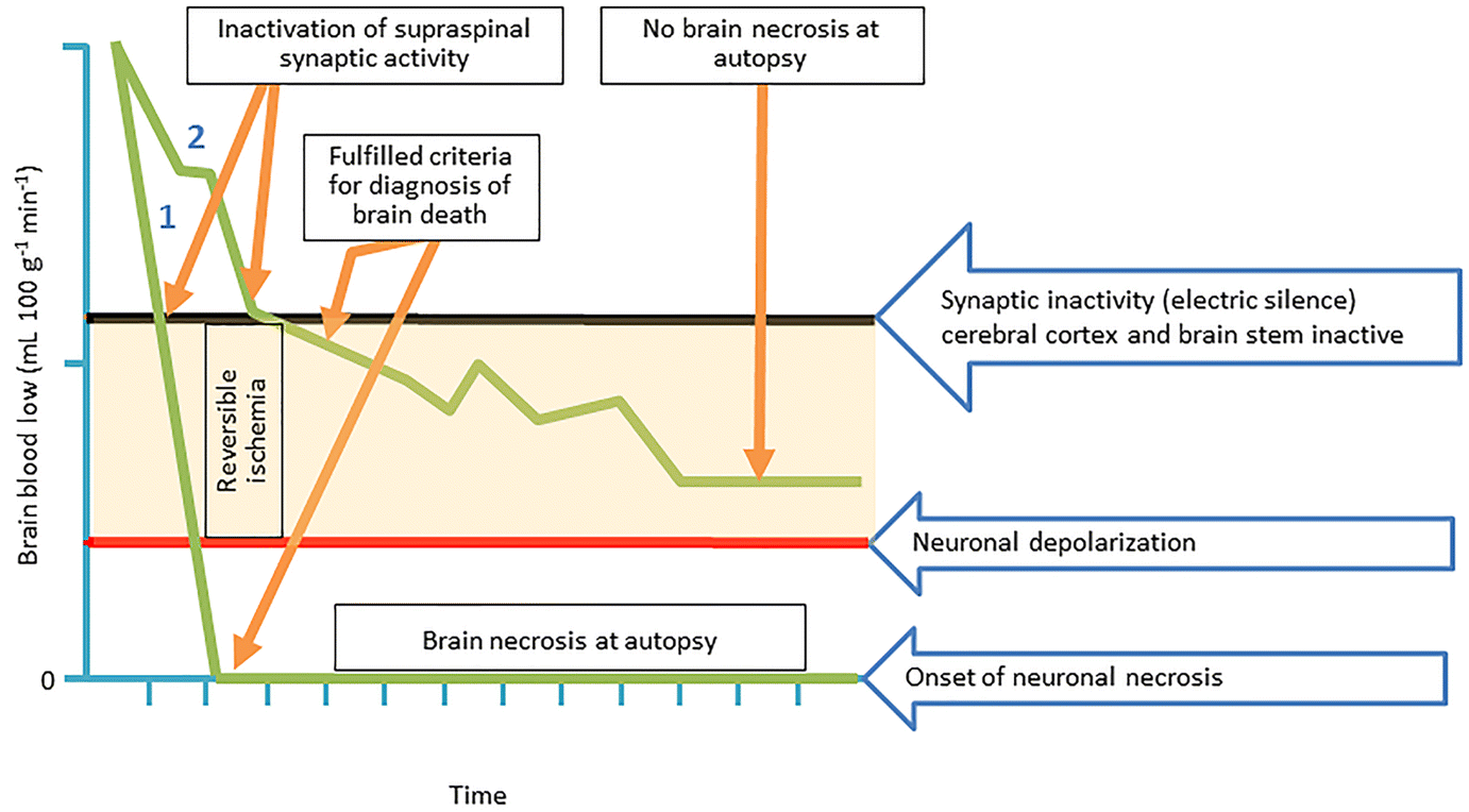 Neuroscience and Brain Death Controversies: The Elephant in the Room