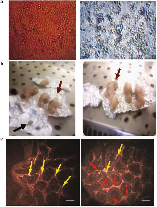 Molecular effect of human umbilical cord blood CD34-positive