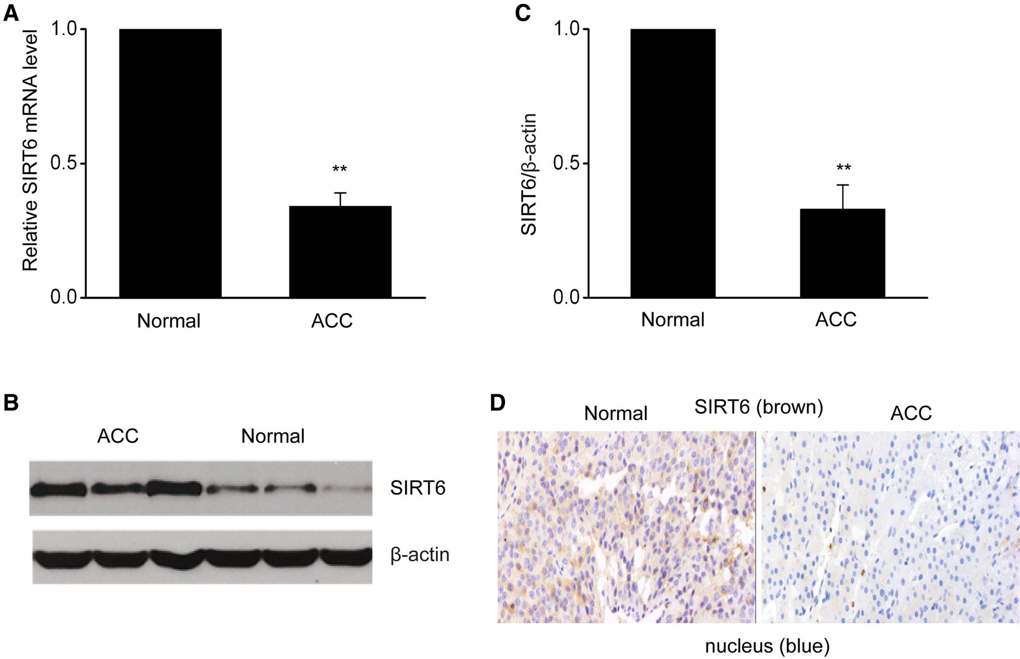 SIRT6 abrogation promotes adrenocortical carcinoma through
