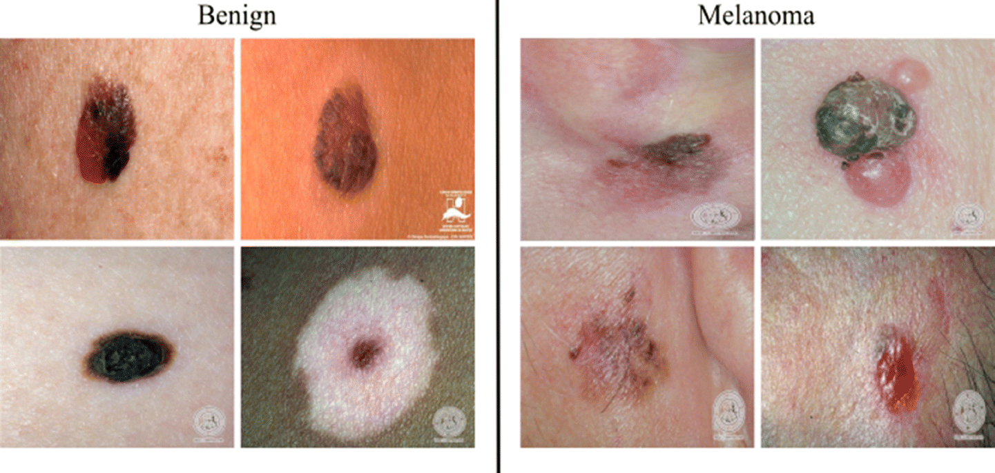 ABCD rule and pre-trained CNNs for melanoma diagnosis