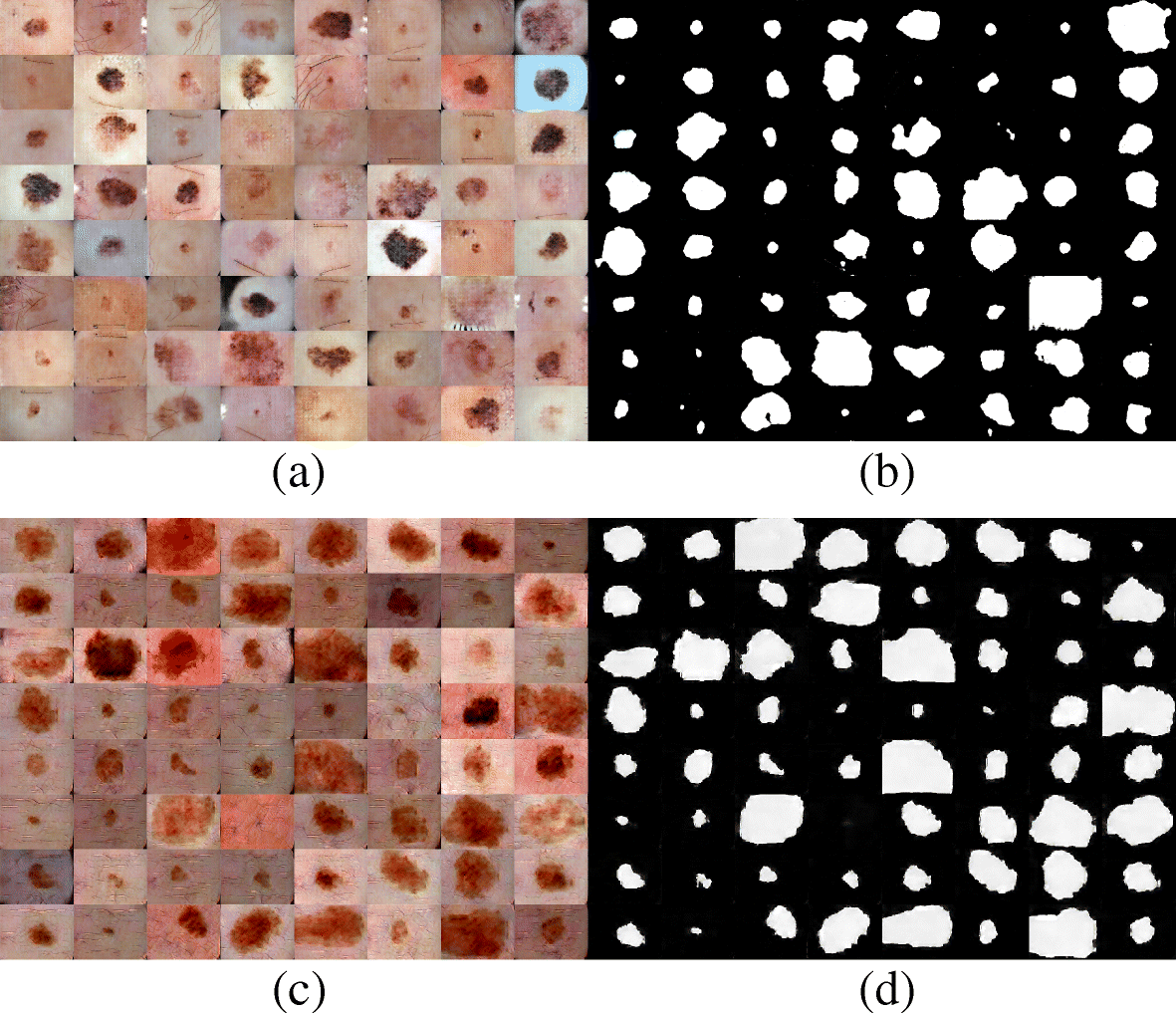 Augmenting data with GANs to segment melanoma skin lesions