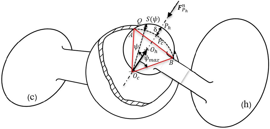 A Dynamic Model Of Polyethylene Damage In Dry Total Hip