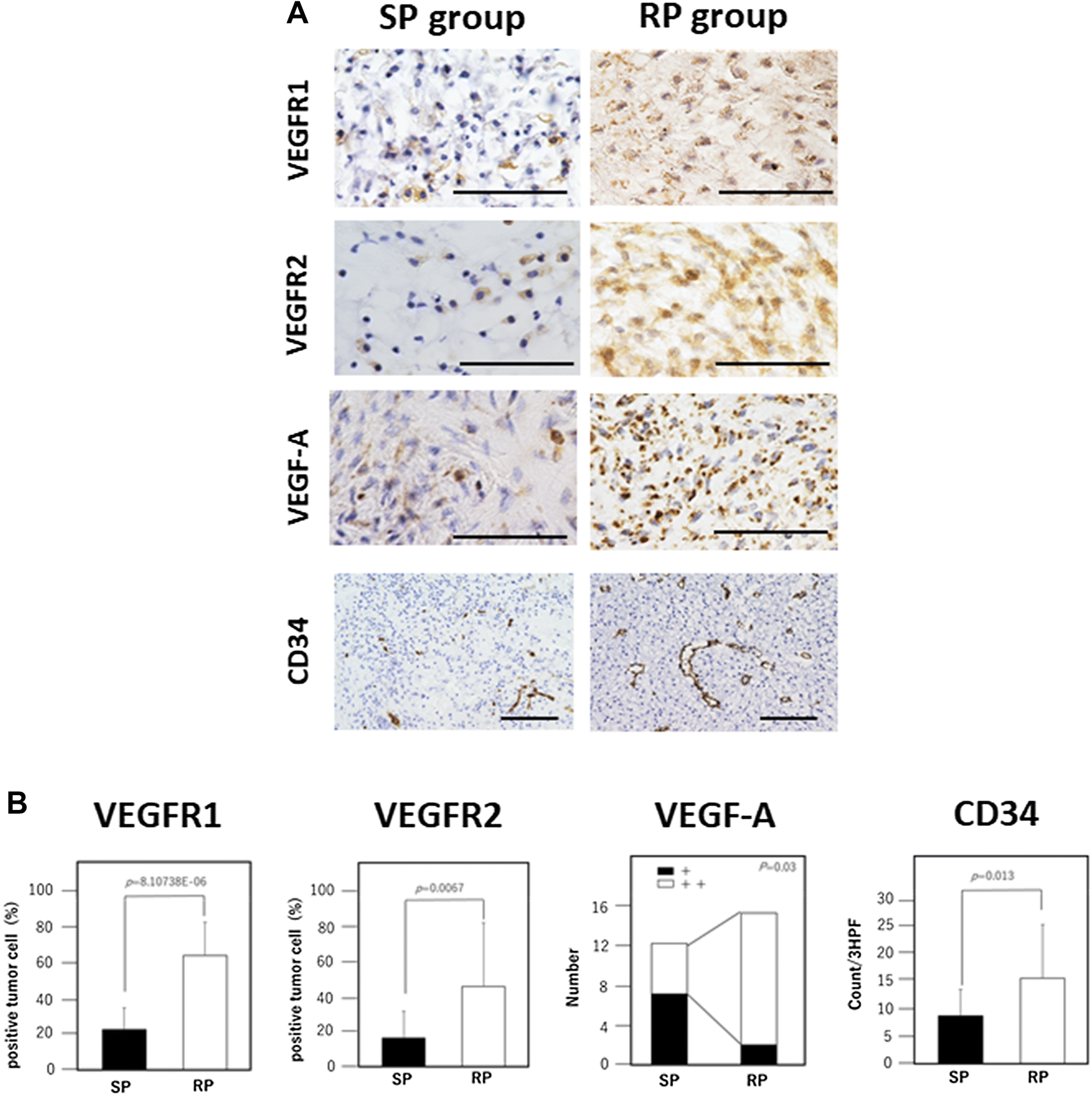Prognostic significance of VEGF receptors expression on the