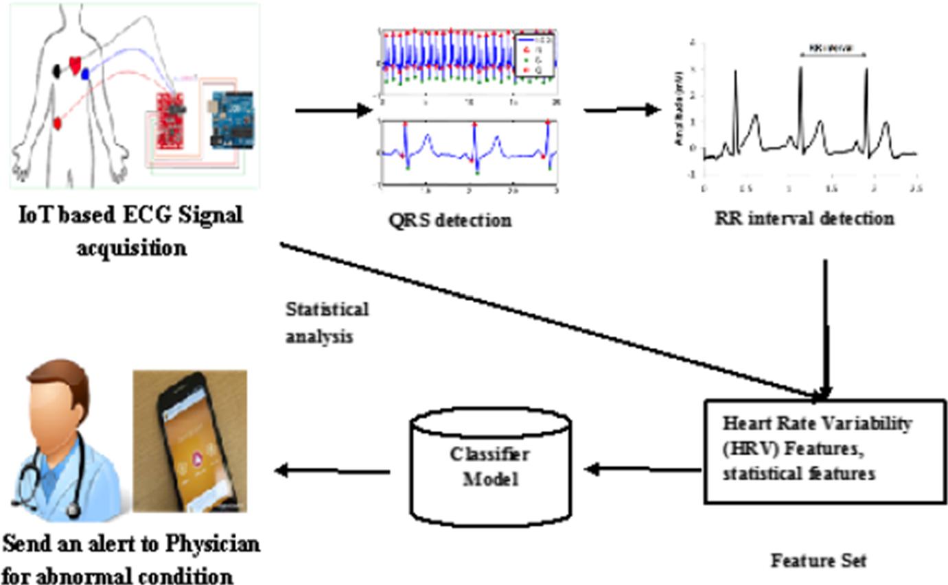 Machine learning and IoT-based cardiac arrhythmia diagnosis