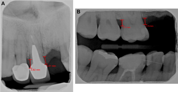 Parison Of Periodontal Evaluation By Conebeam Puted. Open In New Window. Wiring. Mouth Diagram Labeled Radiograph At Scoala.co