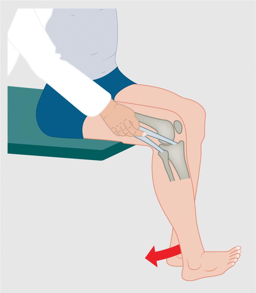 Spontan auftretende Knieschmerzen | SpringerLink