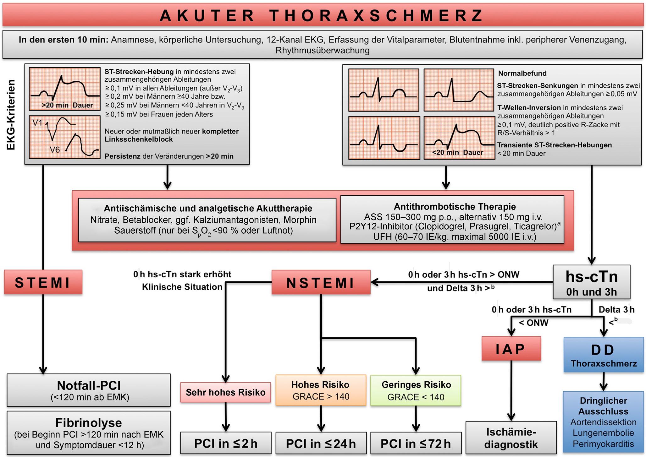 Die ersten Schritte bei akutem Thoraxschmerz | SpringerLink