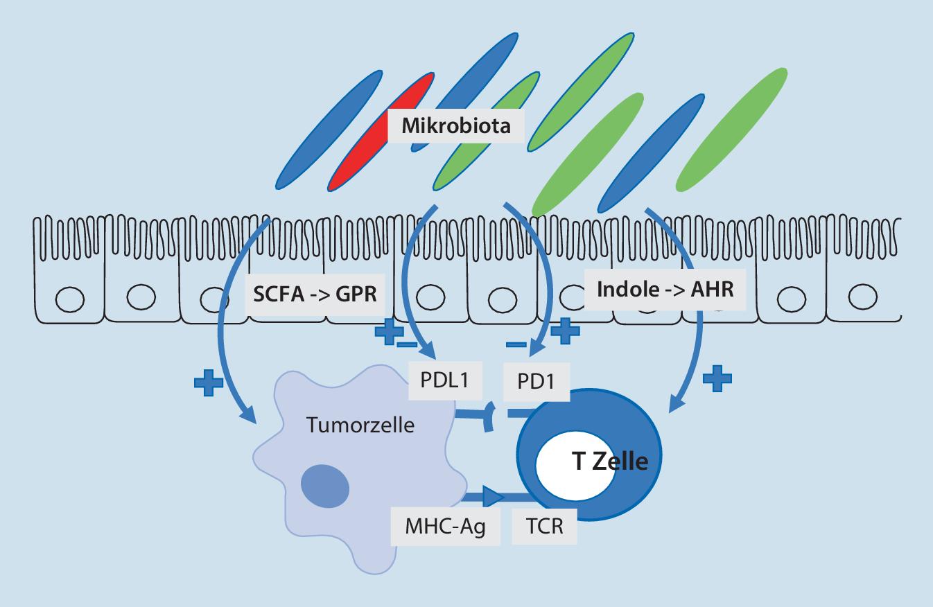 Mikrobiom und Immuntherapien bei Tumorerkrankungen