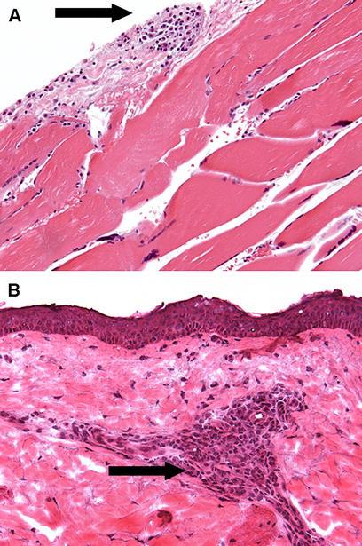 Anti Neutrophil Cytoplasmic Antibody C Anca Positive Recurrent