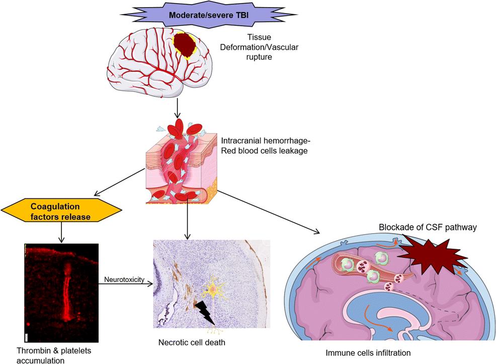 Hemorrhage Associated Mechanisms of Neuroinflammation in