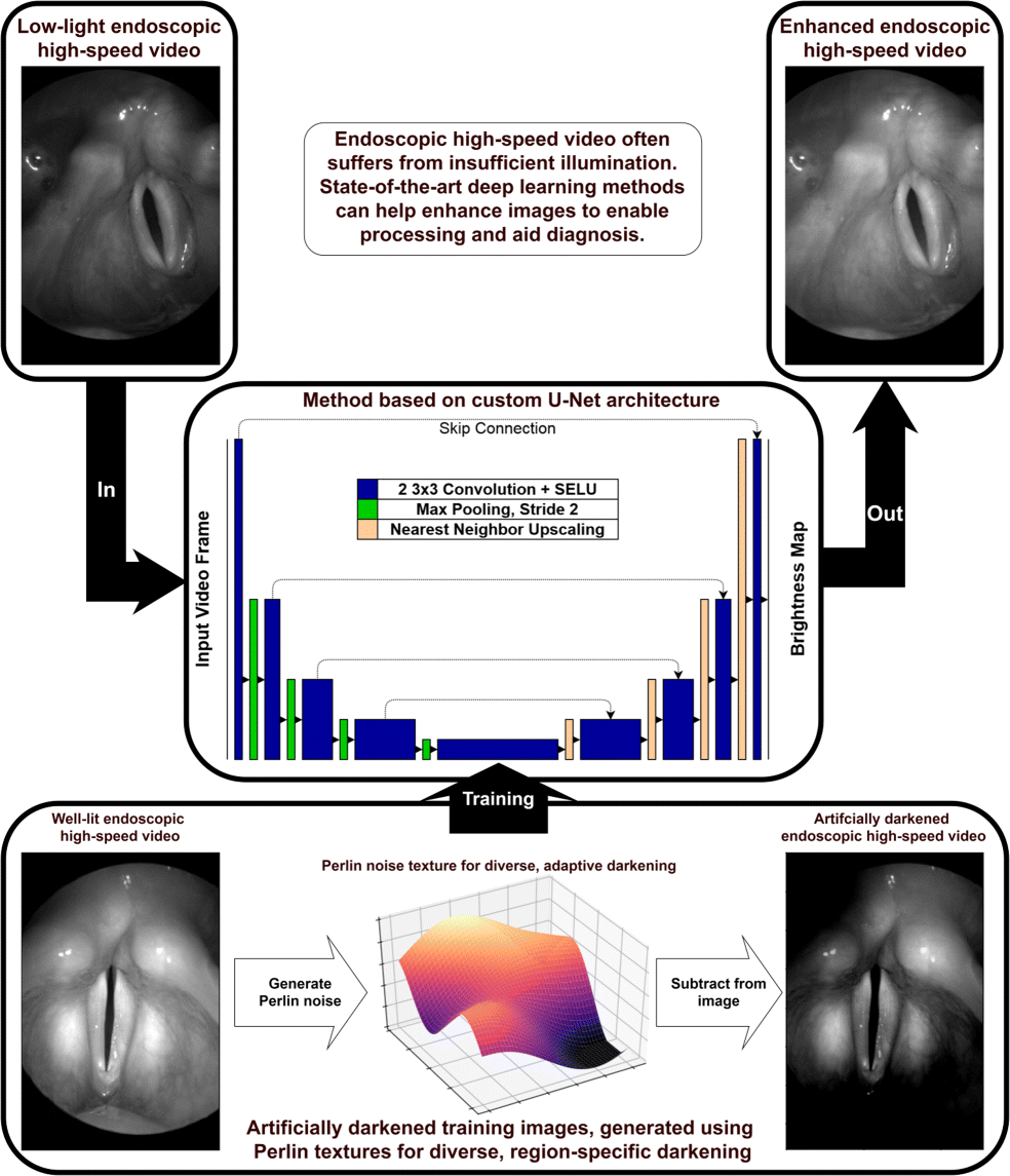 Low-light image enhancement of high-speed endoscopic videos