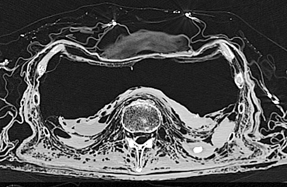 Post-mortem computed tomography (PMCT) radiological findings