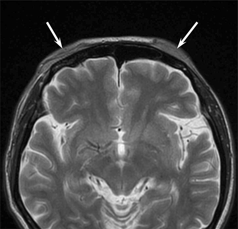 CT and MRI features of scalp lesions | SpringerLink