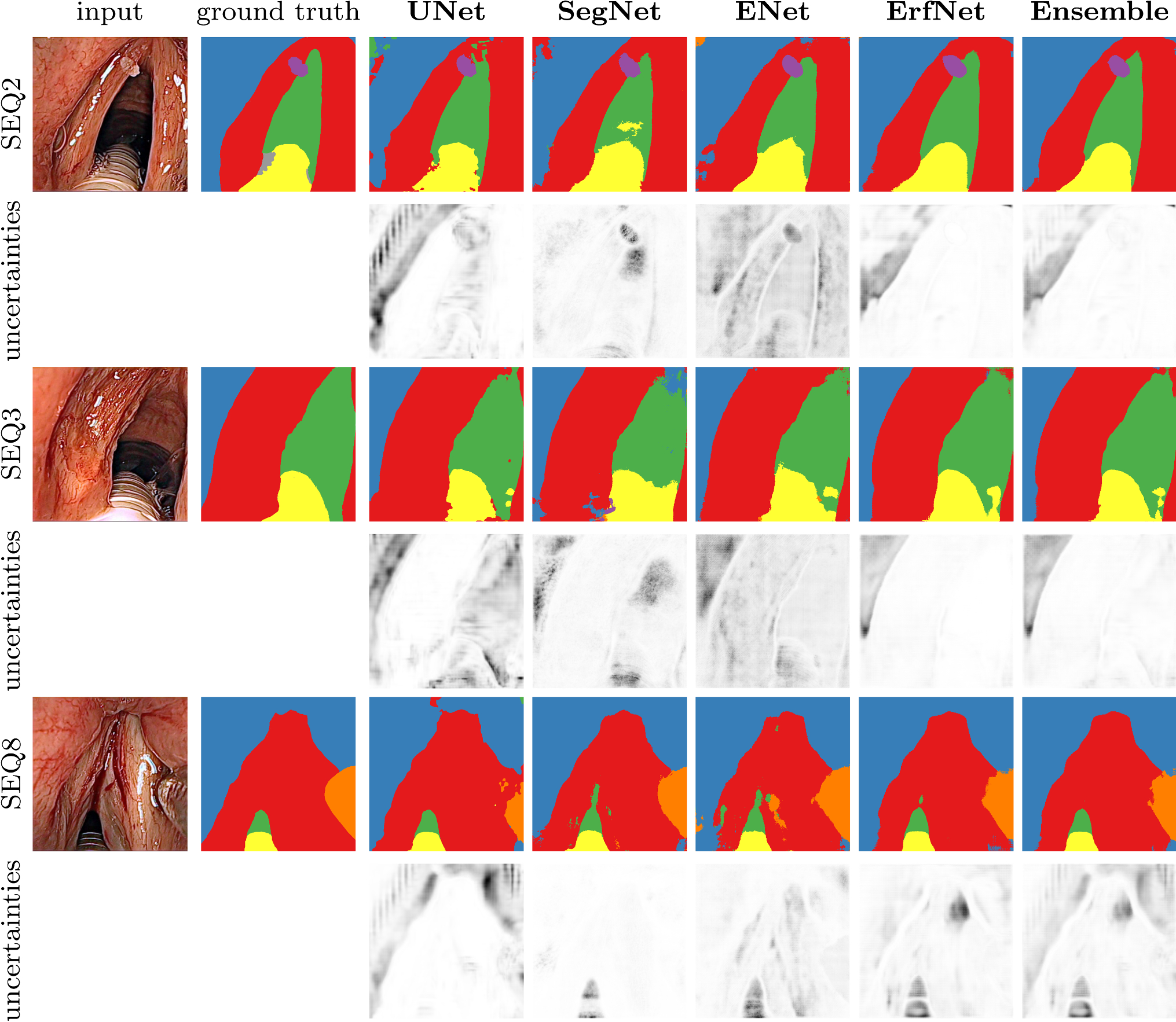 A dataset of laryngeal endoscopic images with comparative