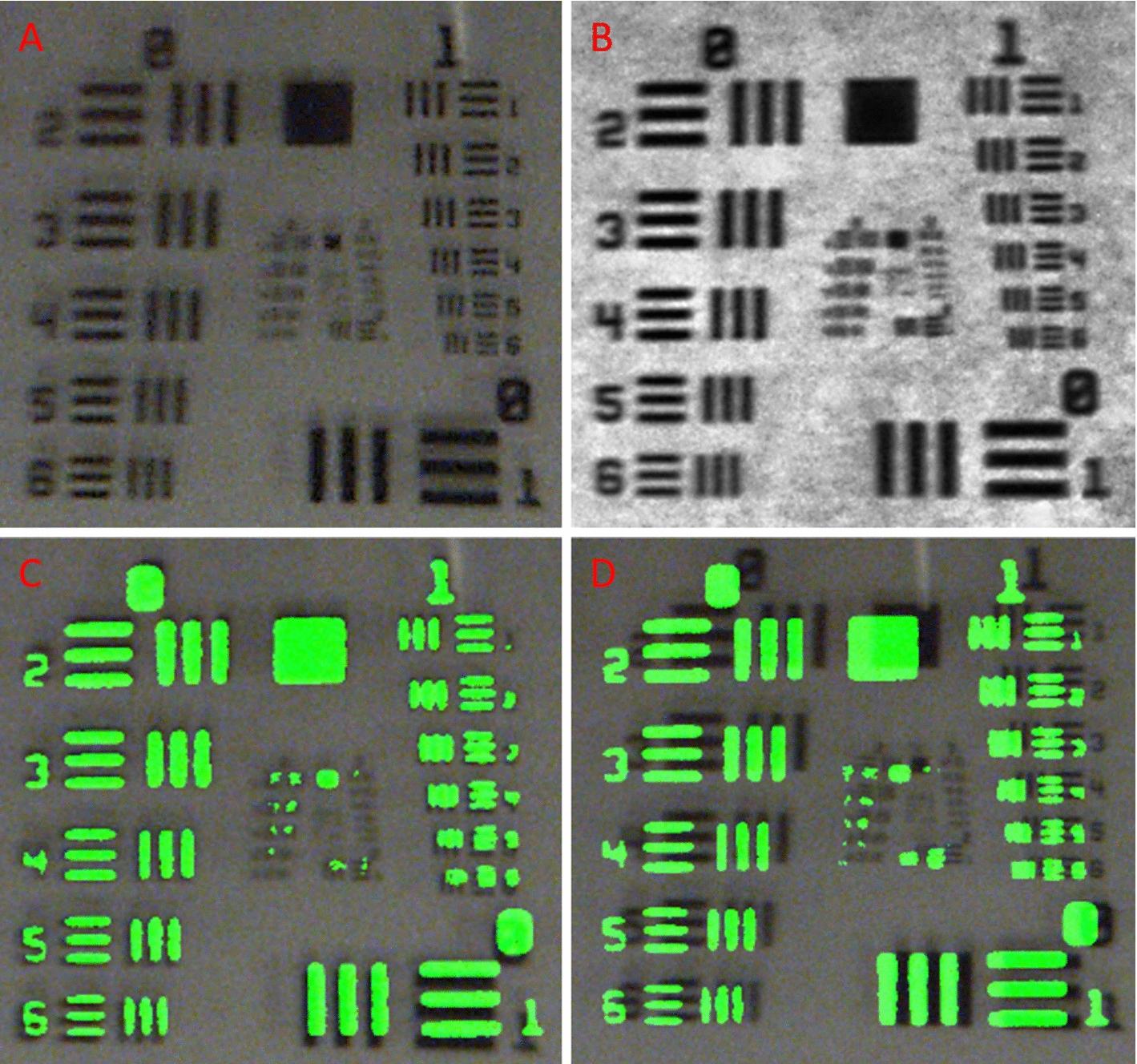 Real-time dual-modal vein imaging system | SpringerLink