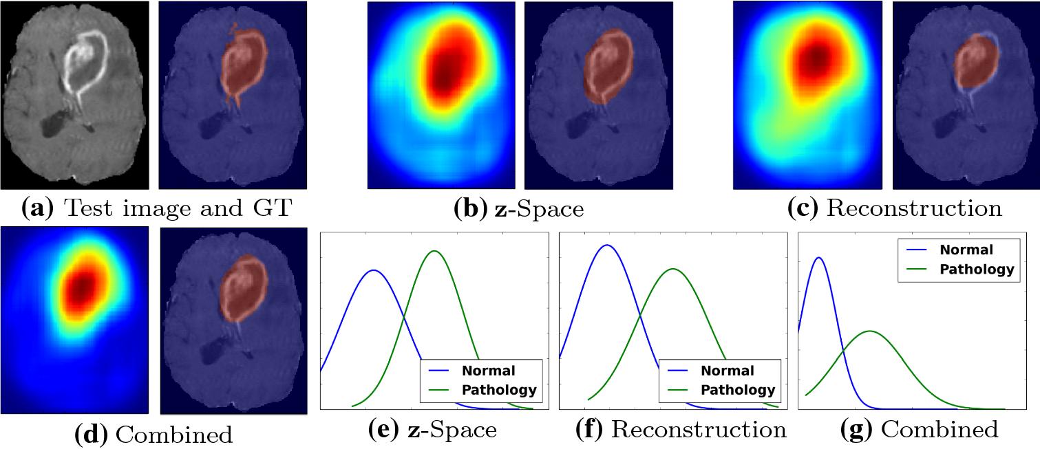 Unsupervised pathology detection in medical images using