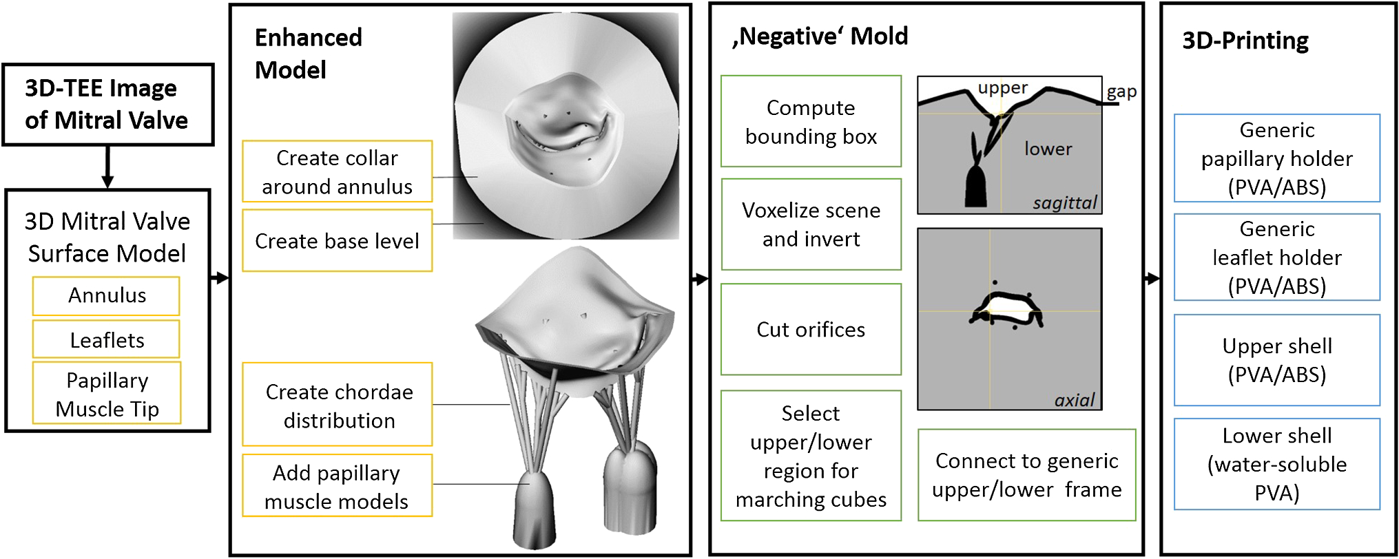 Flexible and comprehensive patient-specific mitral valve