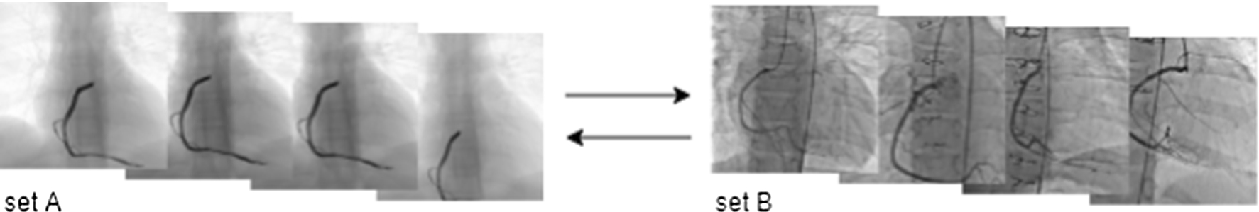 CycleGAN for style transfer in X-ray angiography | SpringerLink