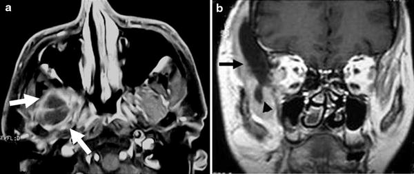 Computed tomography and magnetic resonance imaging of lesions at ...