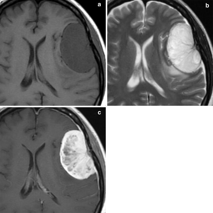 Variants of meningiomas: a review of imaging findings and clinical ...