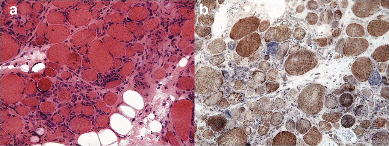 A Patient with Sjogren's Syndrome and Subsequent Diagnosis