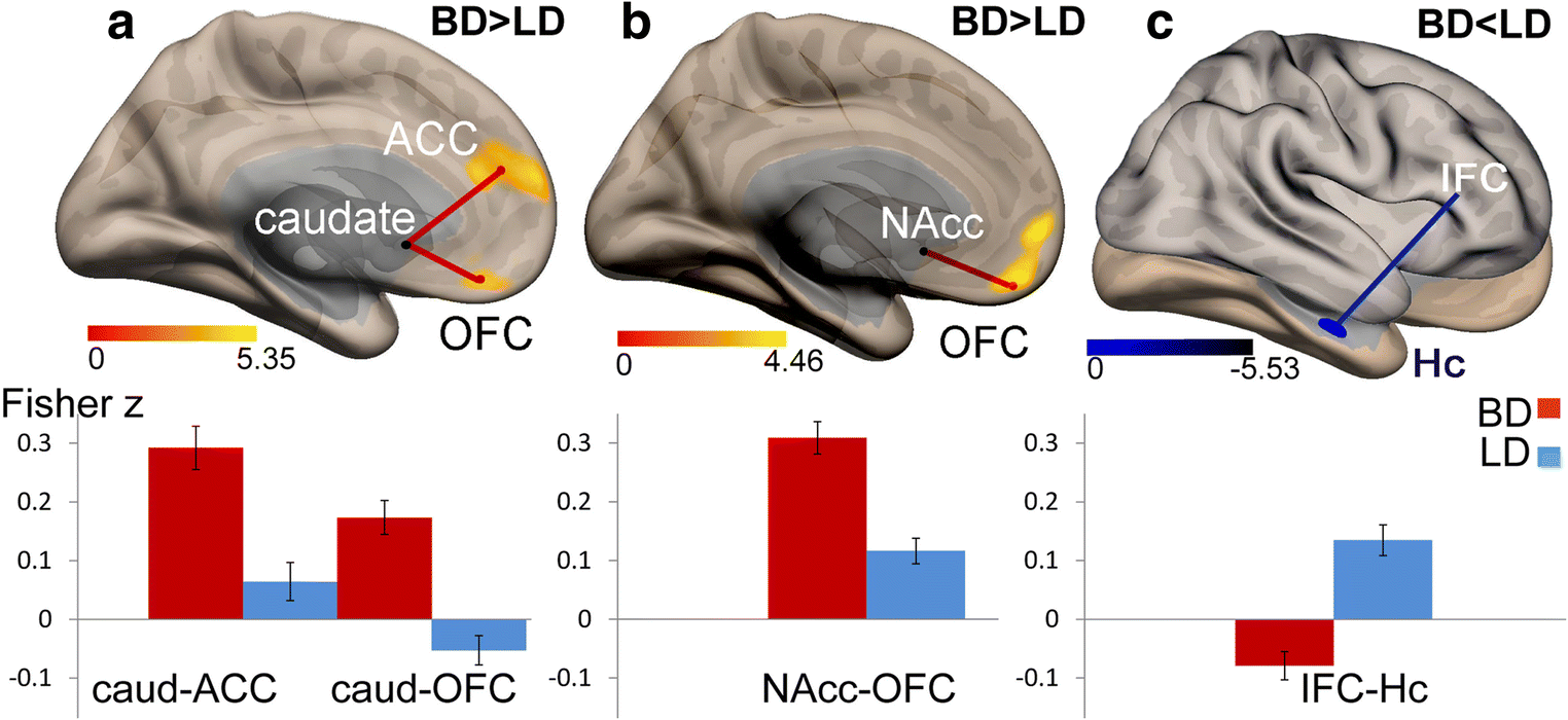 Binge drinking is associated with altered resting state
