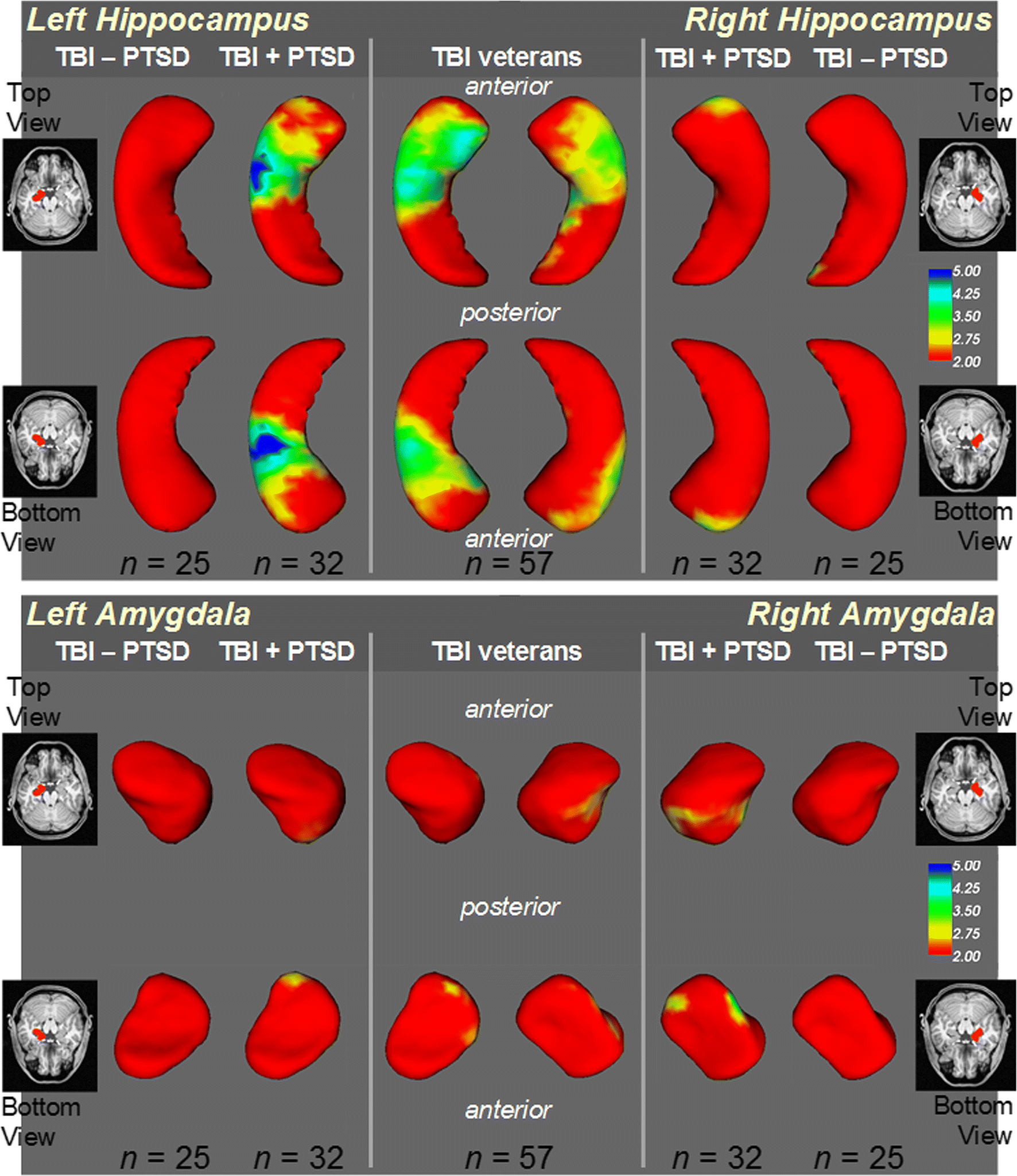 Volume and shape analysis of the Hippocampus and amygdala in