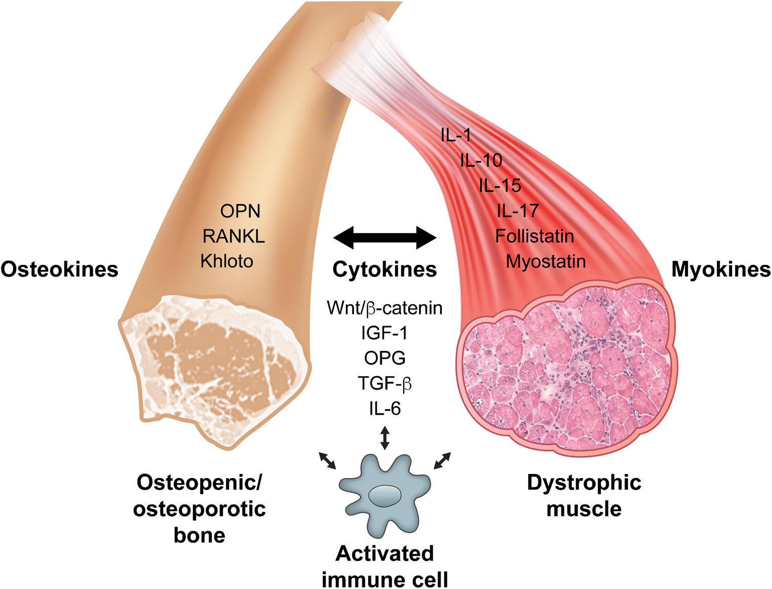 Targeting the Muscle-Bone Unit: Filling Two Needs with One