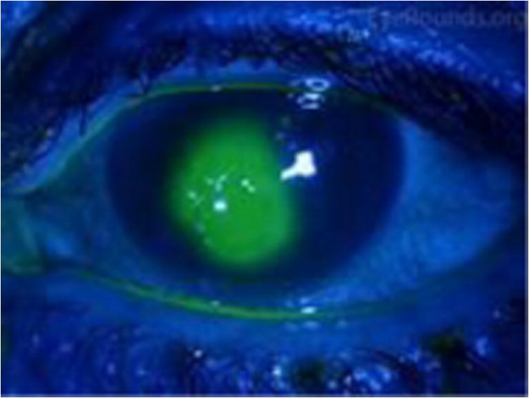 Postoperative Management of Corneal Abrasions and Clinical