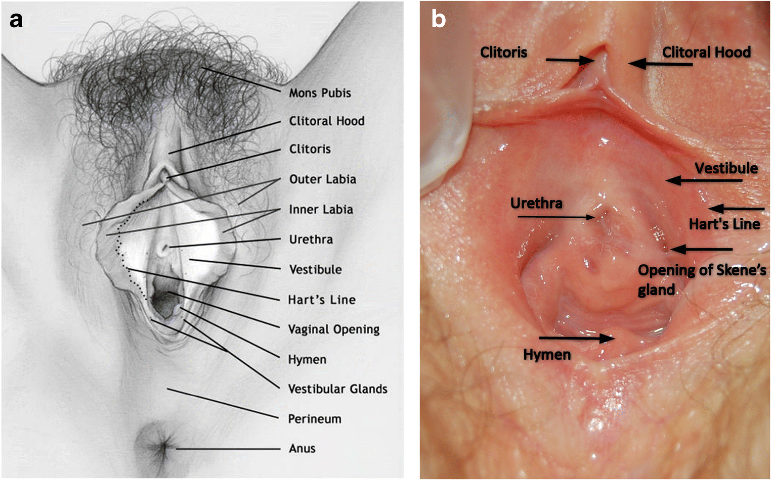 The Vulvar Vestibule, a Small Tissue with a Central Position
