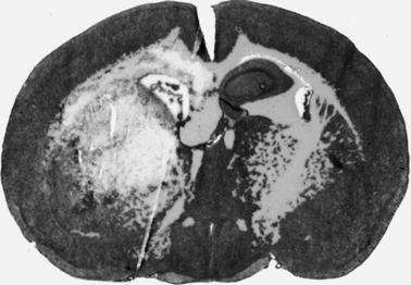 Preclinical Models of Intracerebral Hemorrhage: A