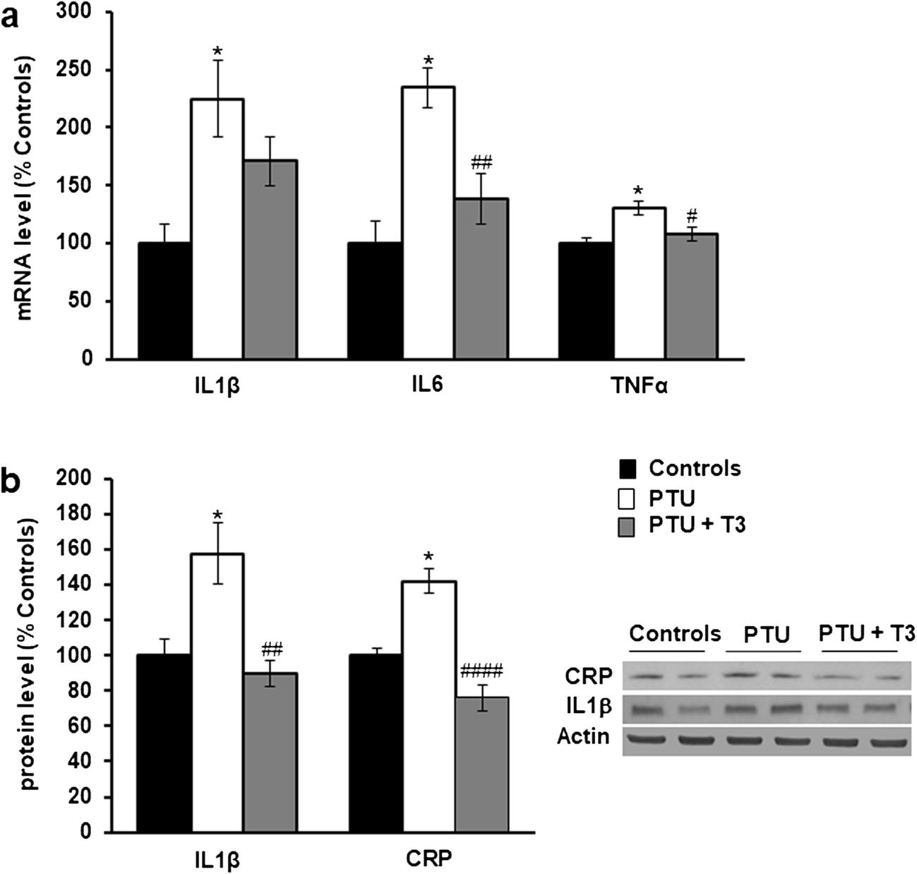 Thyroid Hormone Supplementation Restores Spatial Memory
