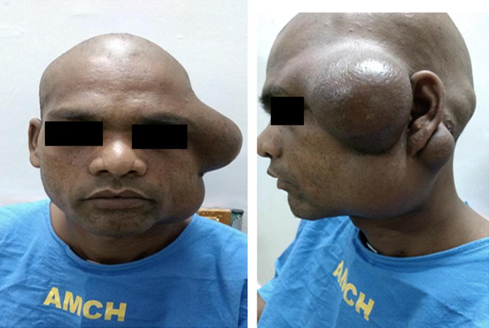 Kimura's Disease: A Rare Cause of Parotid Swelling