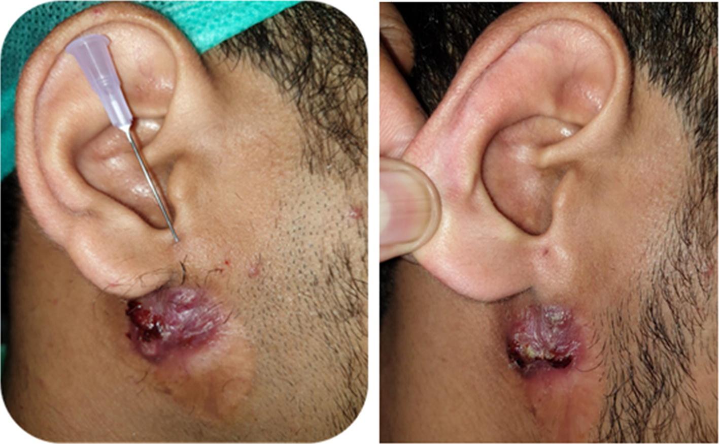 Infra-auricular Sinus: A Very Rare Case Presentation