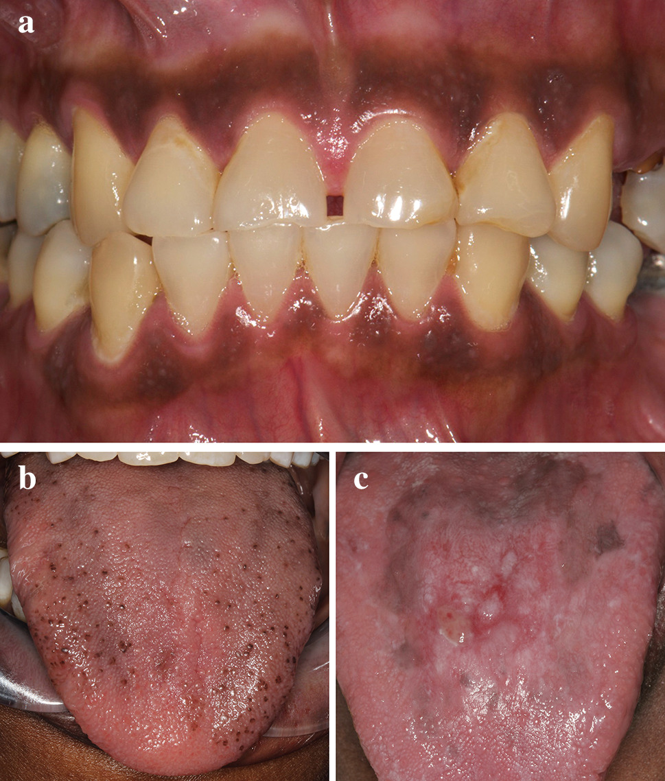Black and Brown: Non-neoplastic Pigmentation of the Oral
