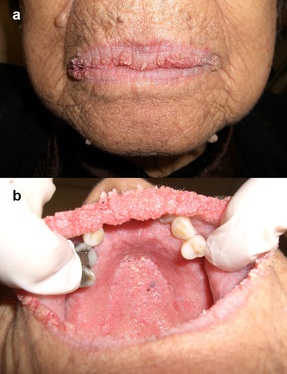 Non-HPV Papillary Lesions of the Oral Mucosa: Clinical and