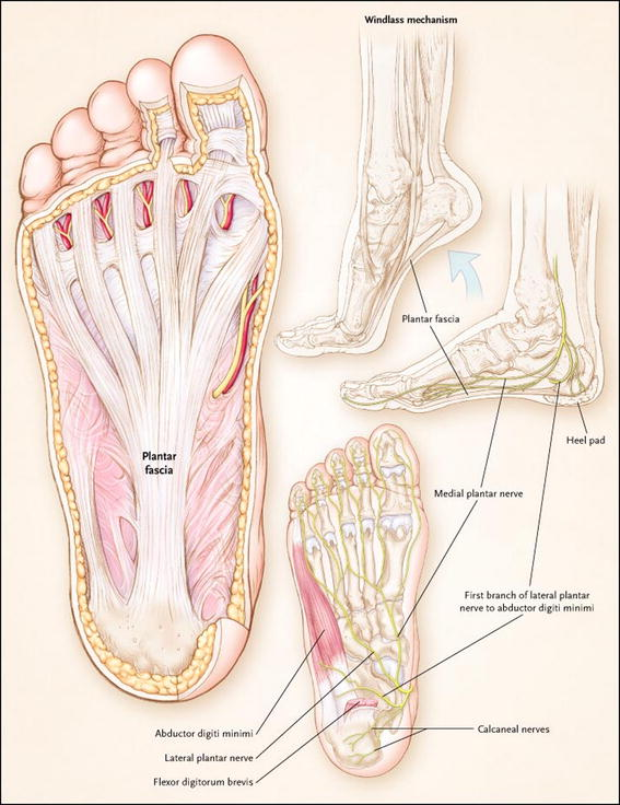 The Real Risks Of Steroid Injection For Plantar Fasciitis With A