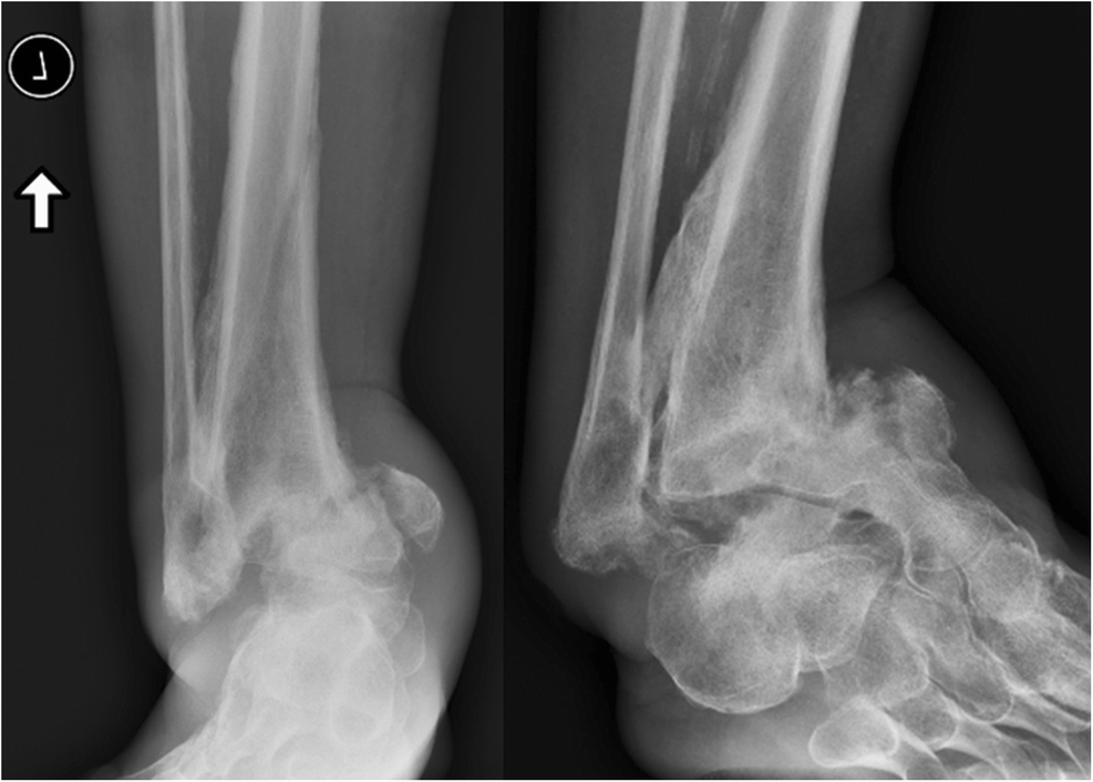 Special Considerations in the Management of Diabetic Ankle Fractures