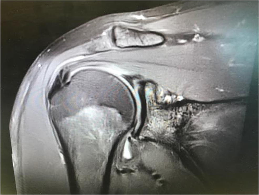 Injuries of the Biceps and Superior Labral Complex in