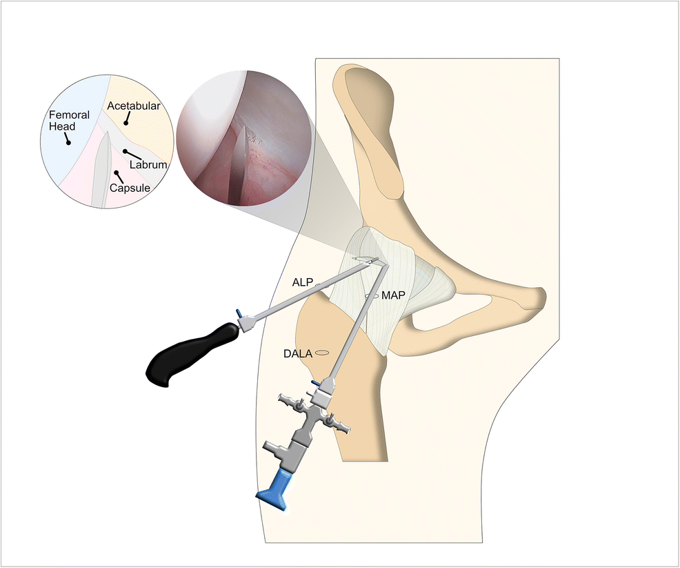 Contemporary Management of the Hip Capsule During Arthroscopic Hip