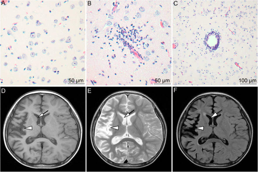 Elevated expression of EBV and TLRs in the brain is associated with