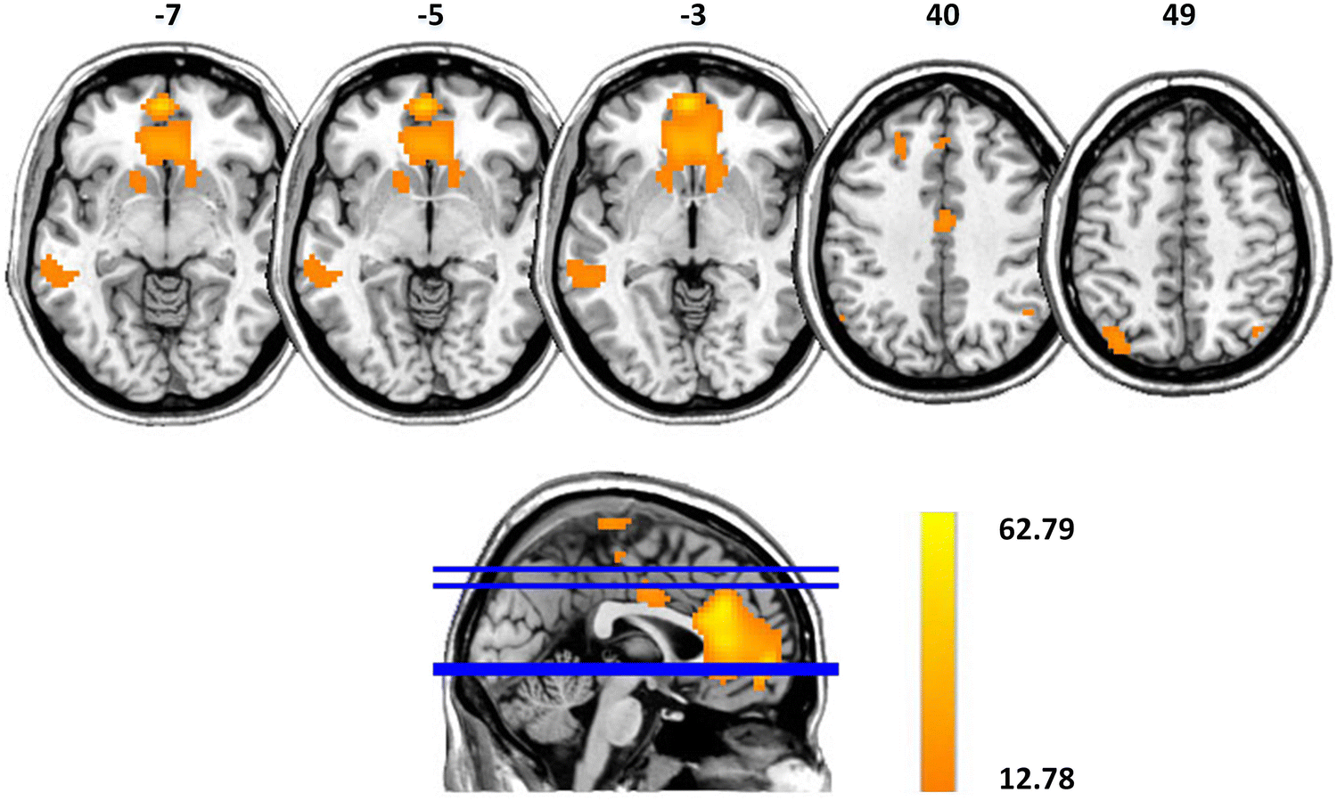 Aberrant Resting-State Functional Connectivity in the