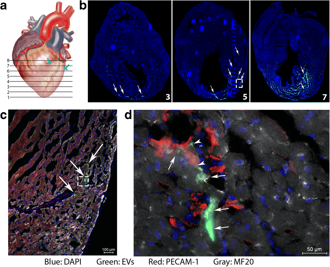 Cardiac Progenitor Cell–Derived Extracellular Vesicles