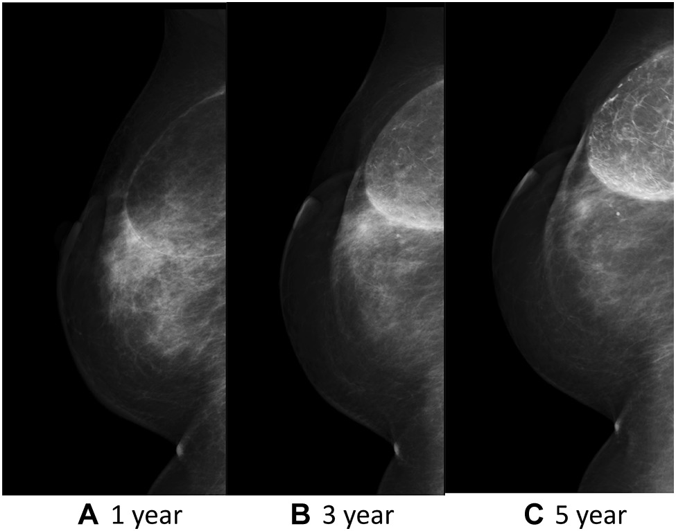 Fat necrosis after breast-conserving oncoplastic surgery   SpringerLink