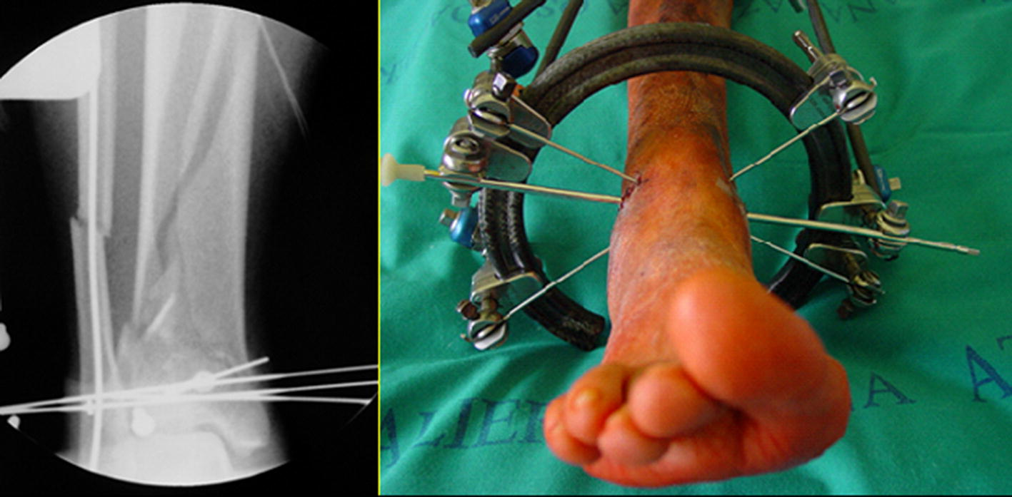 Tibial Pilon Fractures Treated With Hybrid External Fixator