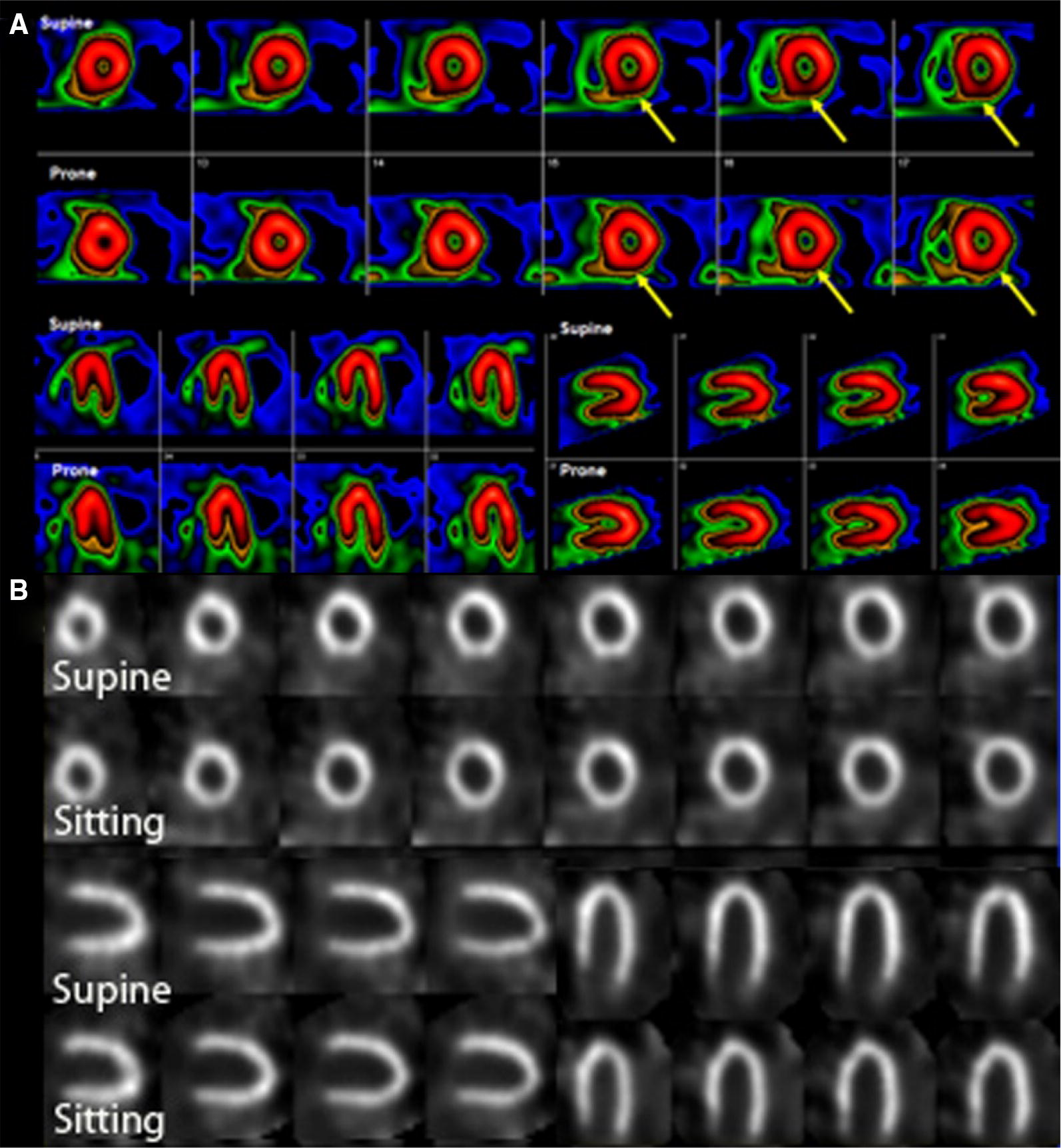 Single Photon Emission Computed Tomography (SPECT